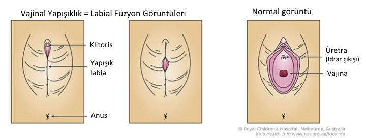 Vajinal Yapişikliklabial Füzyon Dr Yilmaz Bay